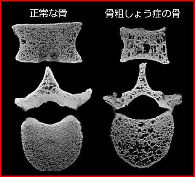 骨粗しょう症の症例写真